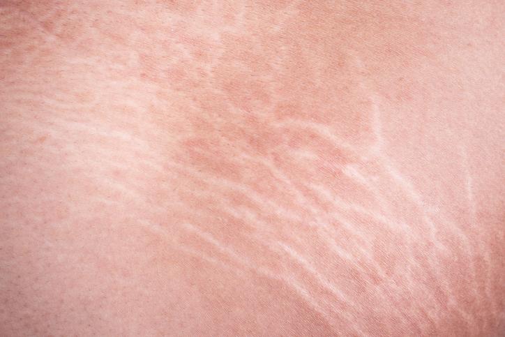 EnerJet Stretch Marks Treatment