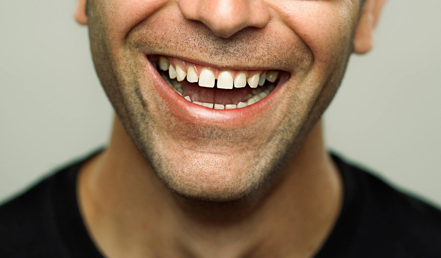 Diastemas – spaces between teeth