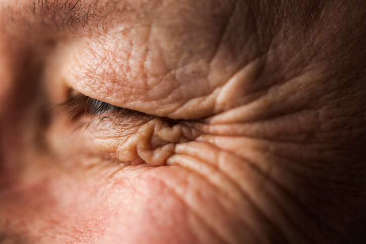 Wrinkles, be gone!
