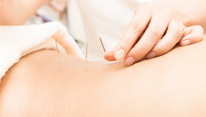 Maintaining Healthy Menstrual Cycle with Acupuncture