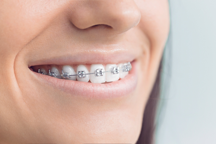 Braces – more than just for pretty smiles