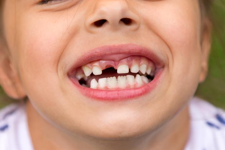 Dental injuries in children